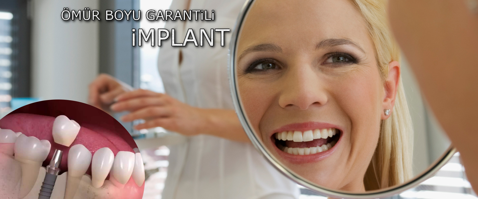 Diş implantı