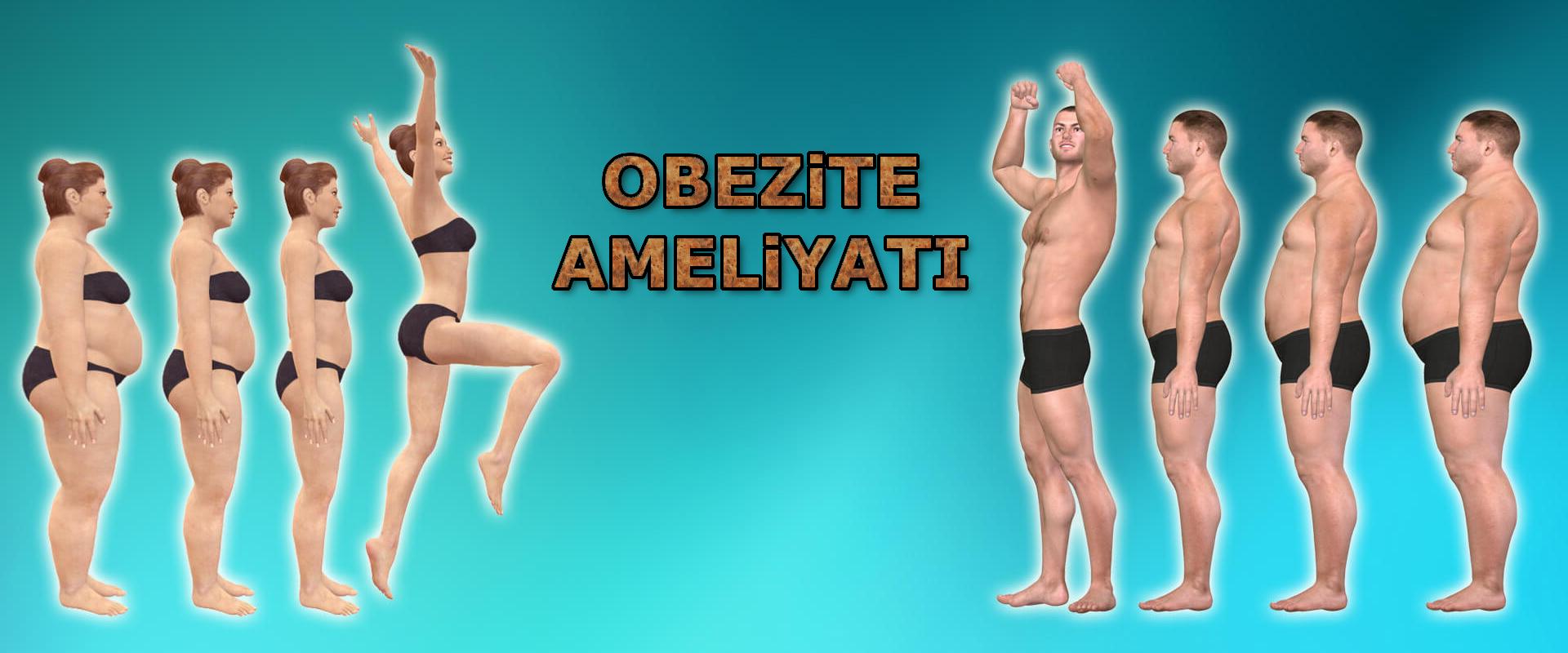 Obezite Ameliyatı