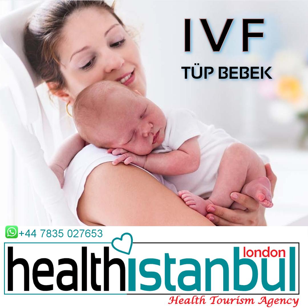 IVF (Tüp Bebek) ile ilgili sıkca sorulan sorular