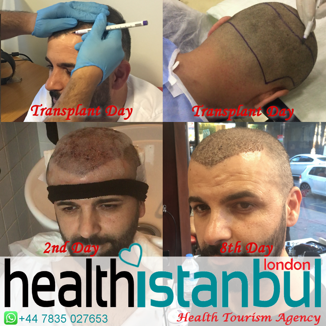 About Hair Transplant