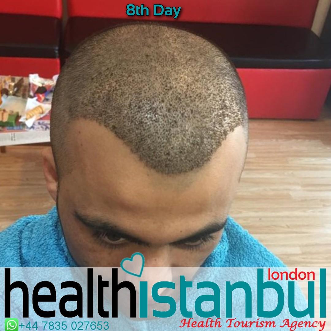 Hair Transplant-3